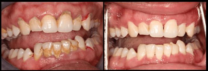 teeth whitening teeth whitening Carrollton dental Cleaning Arlington