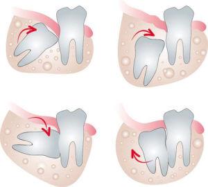 wisdom tooth Removal Carrollton TX wisdom teeth carrollton tx Wisdom Teeth Carrollton TX wisdom tooth Carrollton TX
