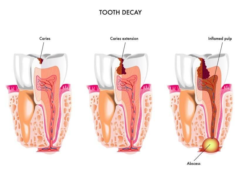 Emergency Dentist Carrollton TX emergency dentist carrollton Emergency Dentist Carrollton Emergency Dentist Carrollton TX