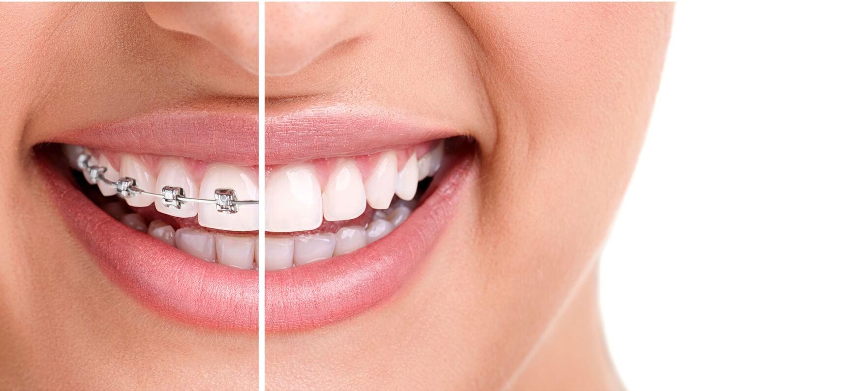 Orthodontist carrollton TX  orthodontist carrollton Orthodontist Carrollton orthodontist carrollton1 e1417019202879