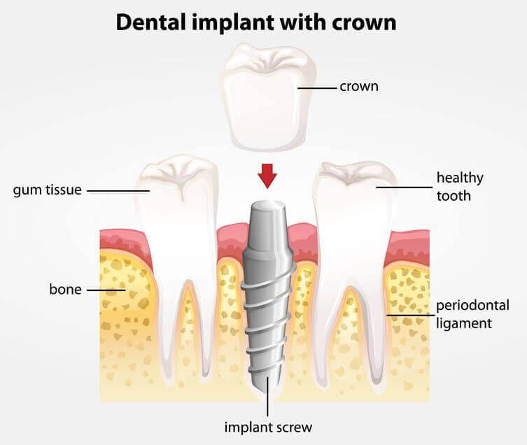 dental implants  Dental ImplantsCarrollton Dental implant Carrollton